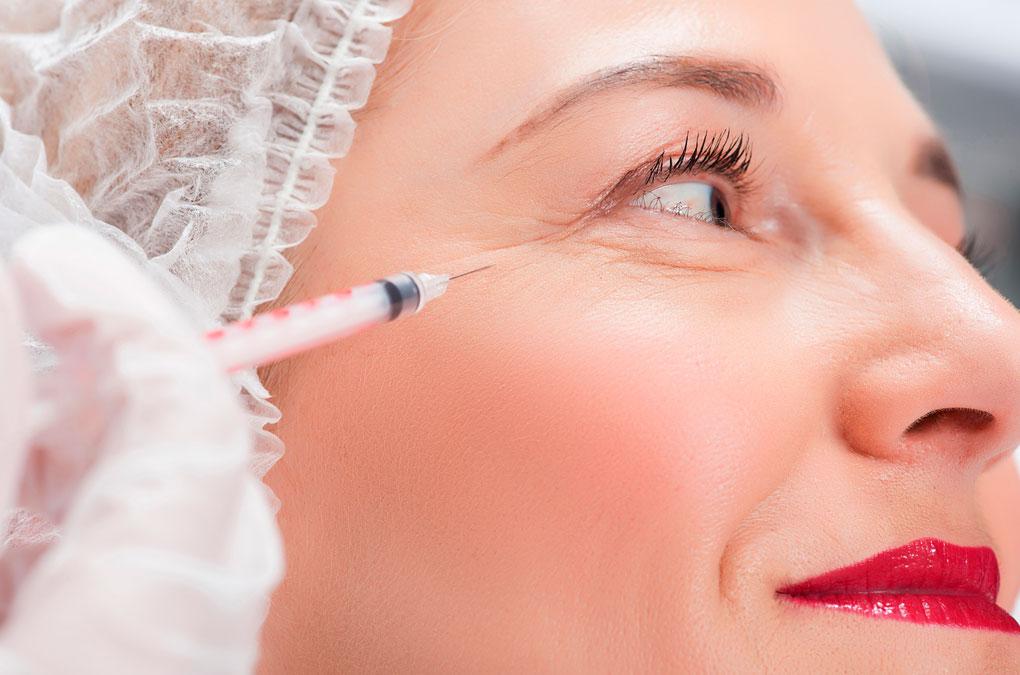Botox Behandlung Augenfalten Basel